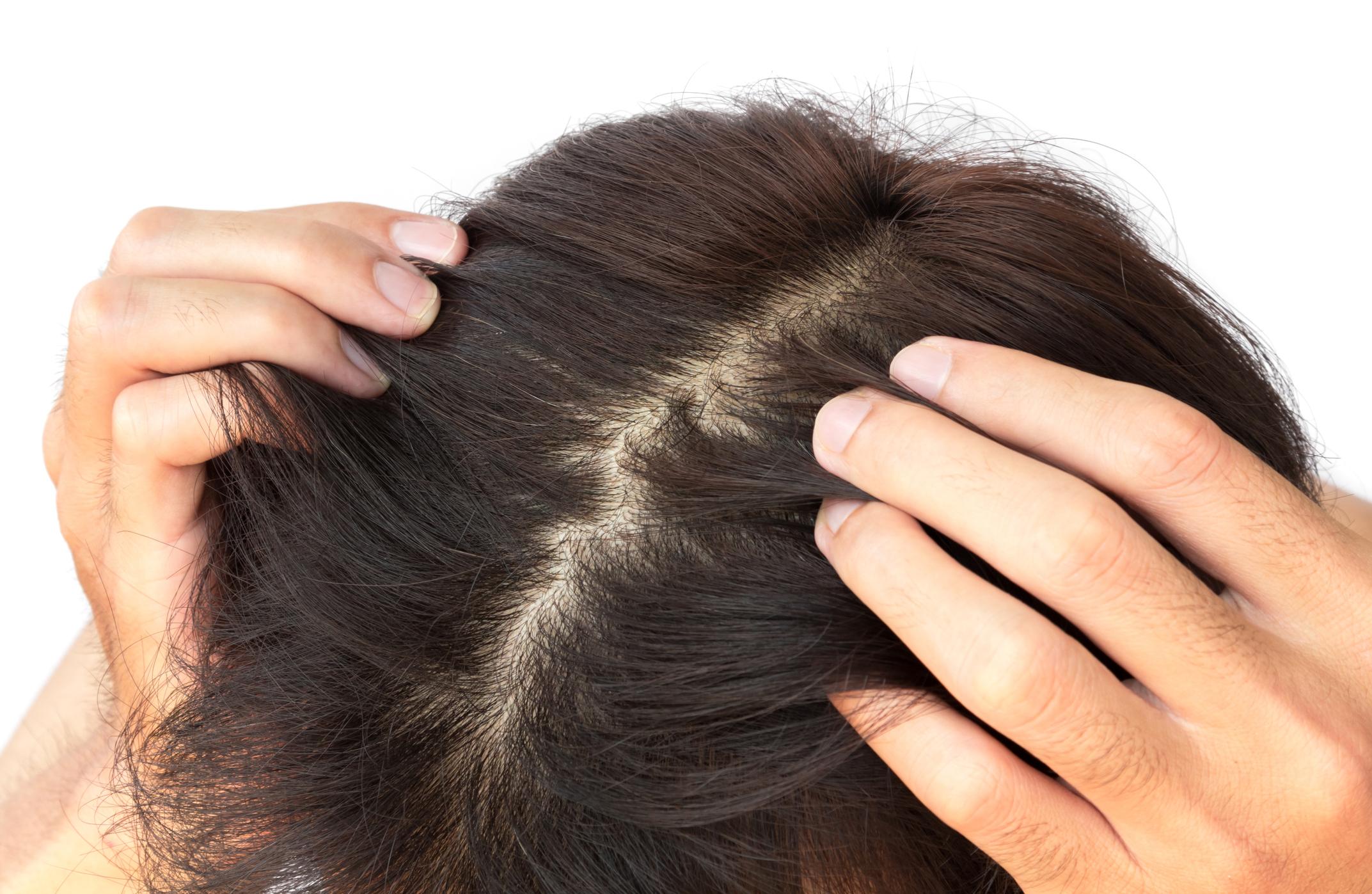 hogyan kell mosni a hajat a fej pikkelysömörével népi gyógymódok
