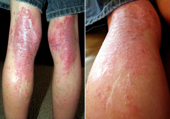 pikkelysömör kezdeti stádium tünetei és kezelése