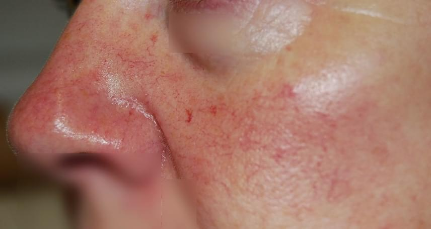 fizikai megterhelés után vörös foltok az arcon