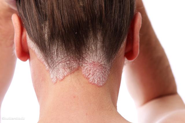vörös foltok az arcon hepatitis C-vel aki pikkelysömörrel kezeli