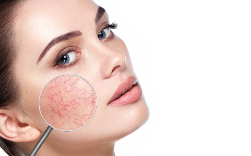 amikor az arc izzad, vörös foltok jelennek meg Melsmon pikkelysömör kezelése