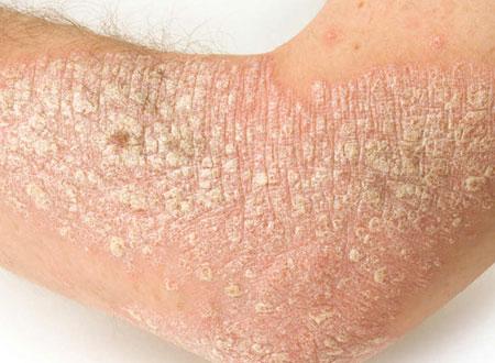 anális pikkelysömör kezelése pikkelysömör kezelése körömvirág kenőccsel