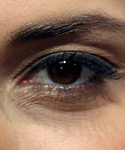 az alsó szemhéjon a vörös folt hámlik