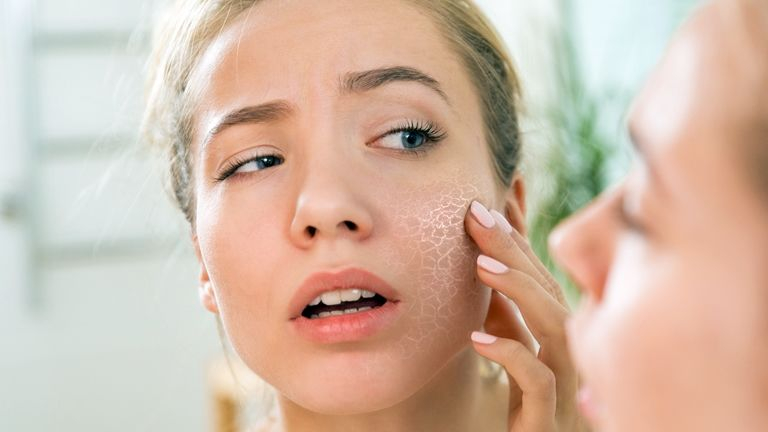 Érzékeny arcbőr: foltok és viszketés