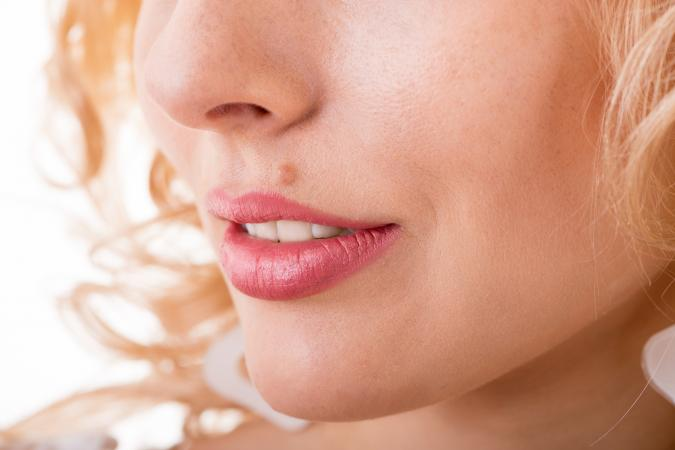 hogyan lehet megszabadulni az arcon lévő vörös anyajegytől)