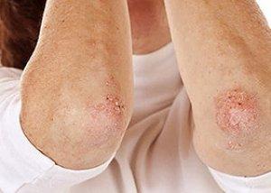 psoriasis vulgaris progresszív stádiumú kezelés vörös foltok az arcon, amikor iszom