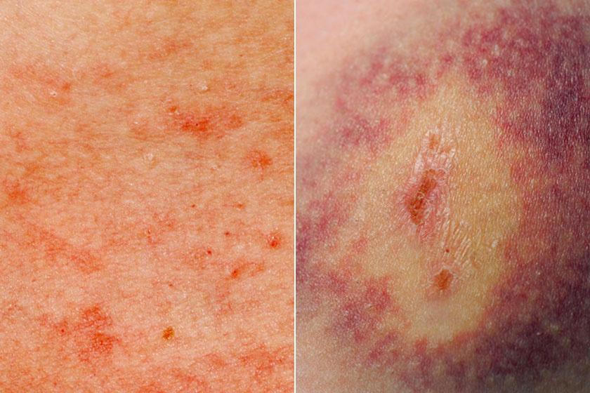 vörös foltok a bőr alatt a test fotón