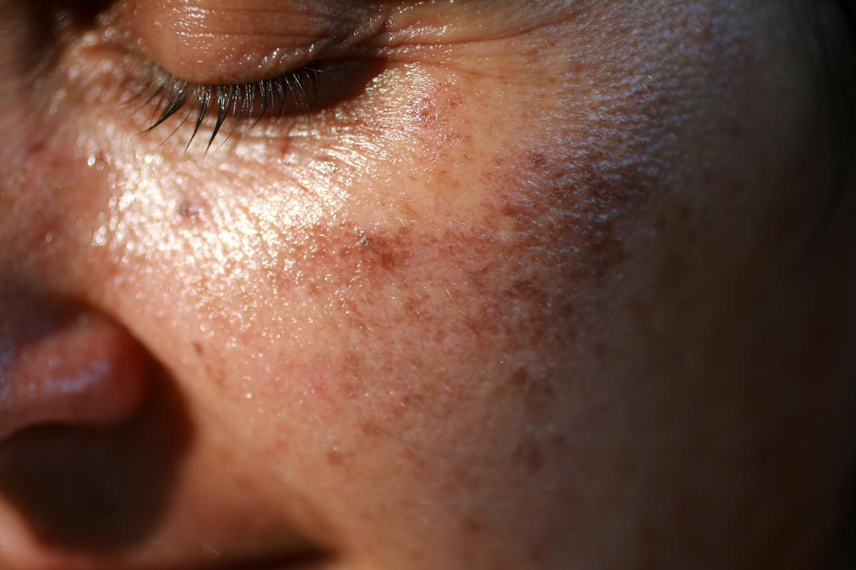 hatékony orvosság az arcon lévő vörös foltok ellen)