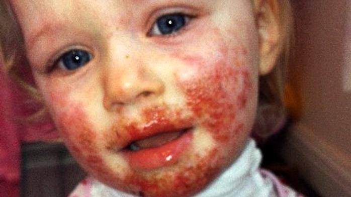 vörös foltok a herpesz arcán