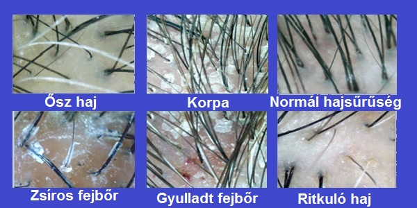 sebek vagy vörös foltok jelennek meg a fejbőrön pikkelysömör hatékony kezelsi mdszerei