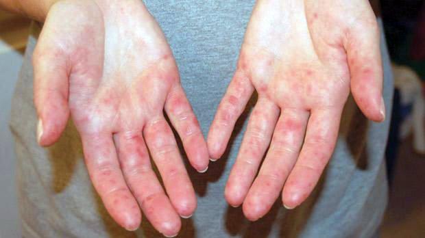 vörös folt a kezén durva folt