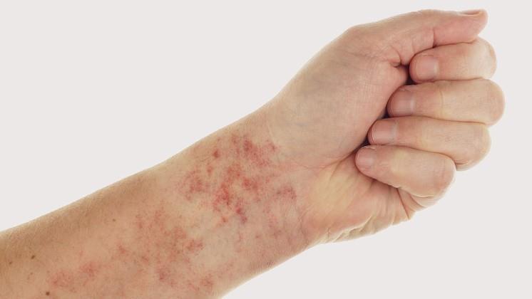 vörös foltok a lábakon tünetek