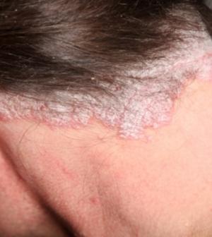 hatékony pikkelysömör kezelése otthoni fejbőrön