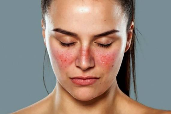 az arc fürdés után vörös foltokkal borul