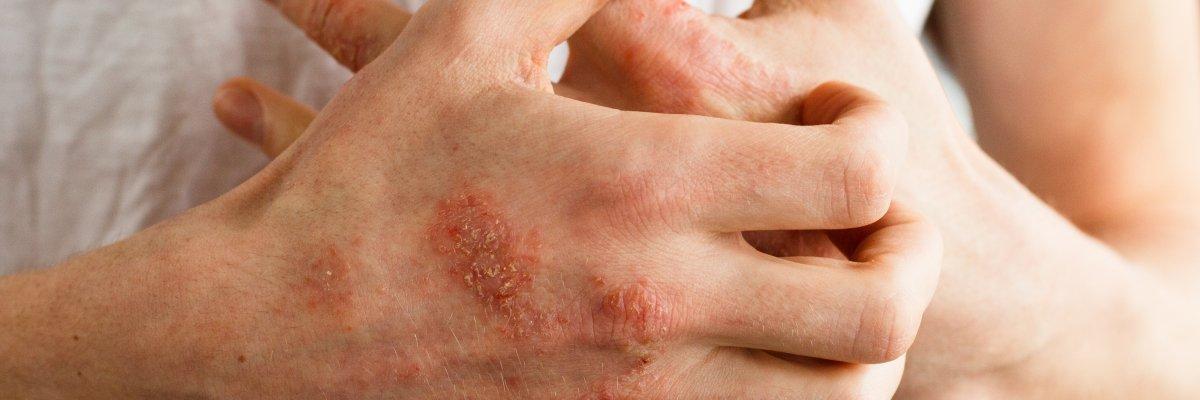 viszketés és vörös foltok az ujjakon meddig gyógyítható a pikkelysömör