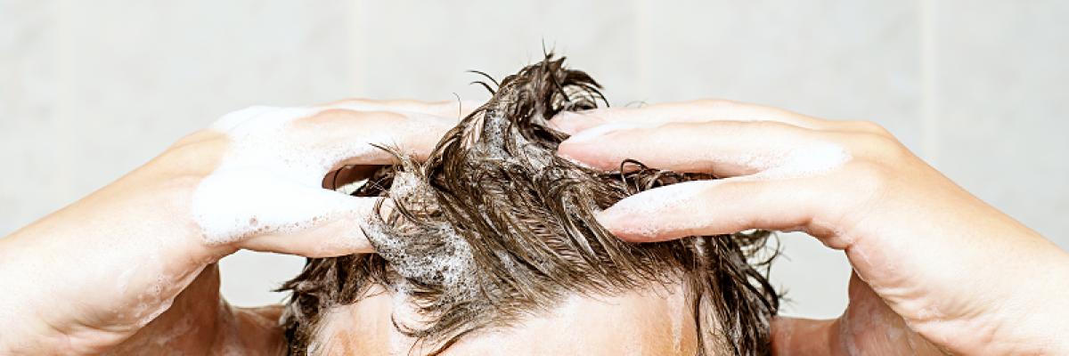 A fejbőr száraz és pikkelyes