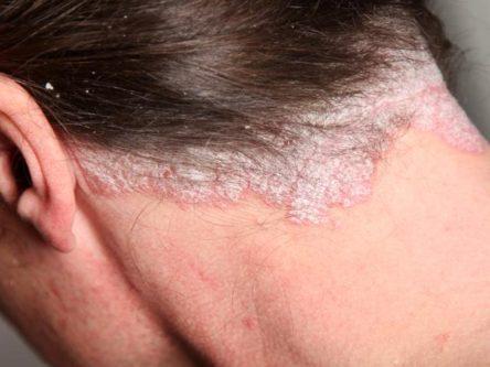 pikkelysömör kezelése otthon az arcon száraz plakkok a könyökön pikkelysömör kezelése