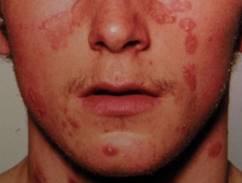hogyan kezelik a pikkelysmr az arcon?