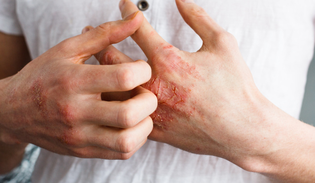 hogyan kezeljük a pikkelysömör súlyosbodását az arcon a testen vörös domború foltok viszketnek