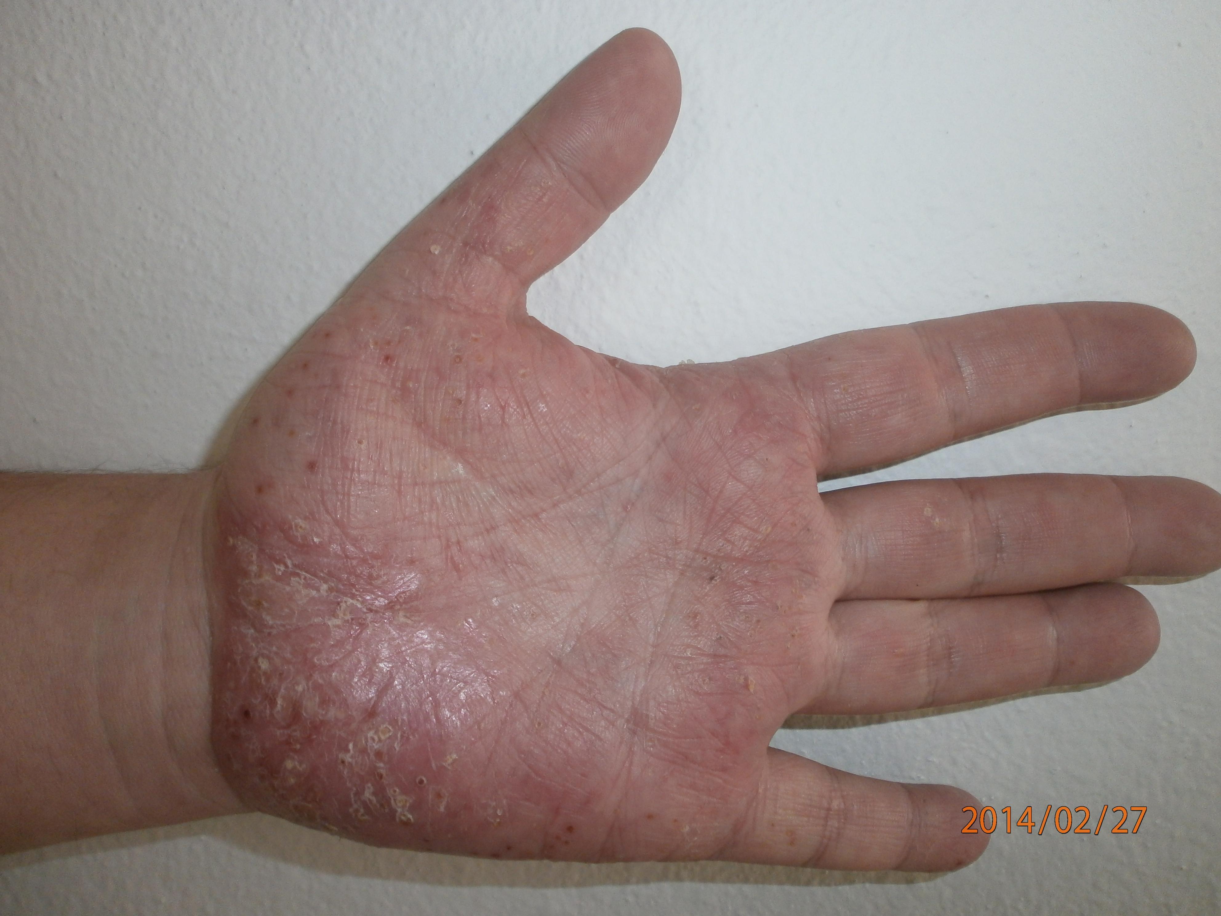kenőcs a tenyér pikkelysömörének kezelésére)