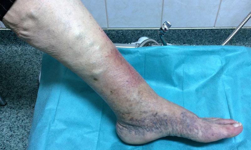 élénkvörös foltok az alsó lábszáron)