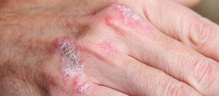 Ez a leggyakoribb krónikus bőrbetegség
