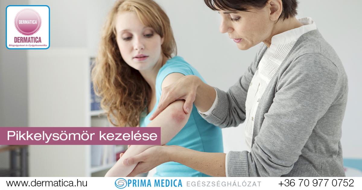 pikkelysömör diéta kezelés megelőzése)