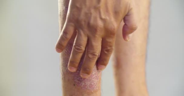 psoriasis vulgaris progresszív stádiumú kezelés vörös foltok a hasán az oldalakon