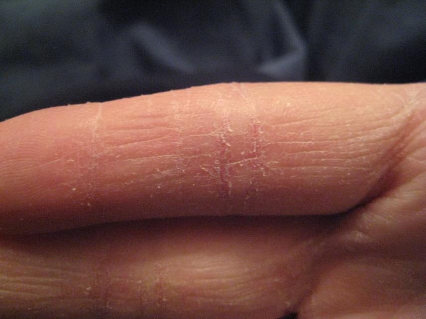 vörös durva folt jelent meg a kéz bőrén)