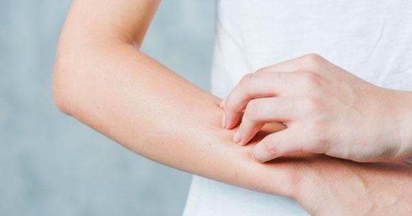 vörös folt a kezén viszket és ég)
