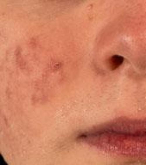 vörös folt az arcon az orr közelében