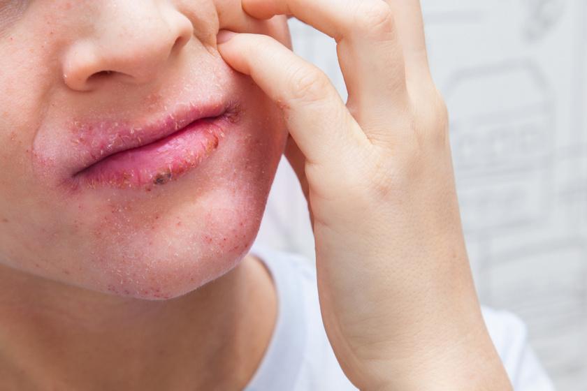vörös pikkelyes folt a száj közelében)